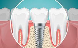 Teeth Installations and Crowns