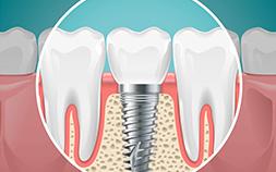 تركيبات الأسنان والتلبيسات