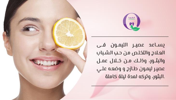 التخلص من حب الشباب - عصير الليمون