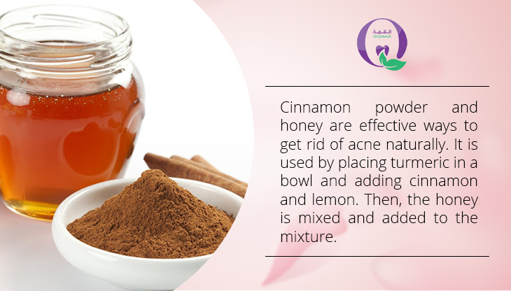 Ways to get rid of acne naturally - Cinnamon powder and honey