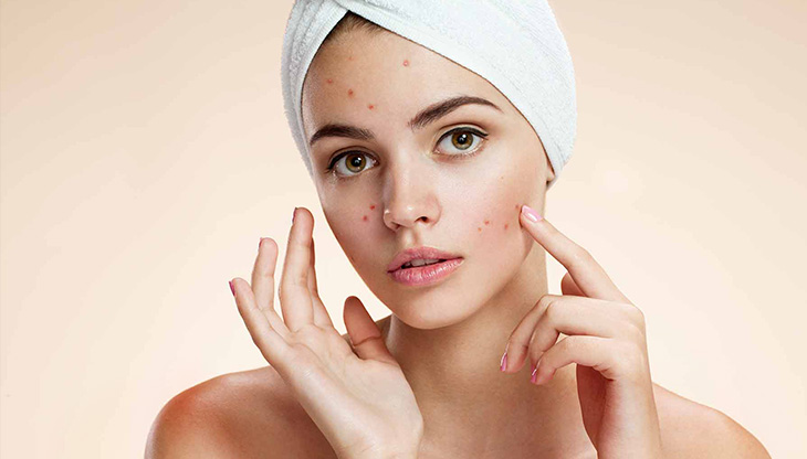 How to remove pimples: Ways to get rid of acne naturally