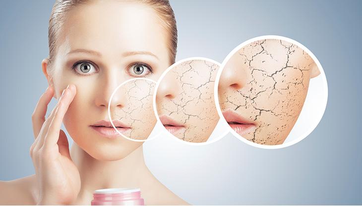 oily skin in winter - Winter effect on the skin