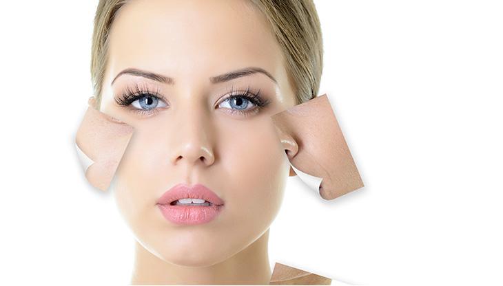 oily skin in winter - Oily skin care in winter